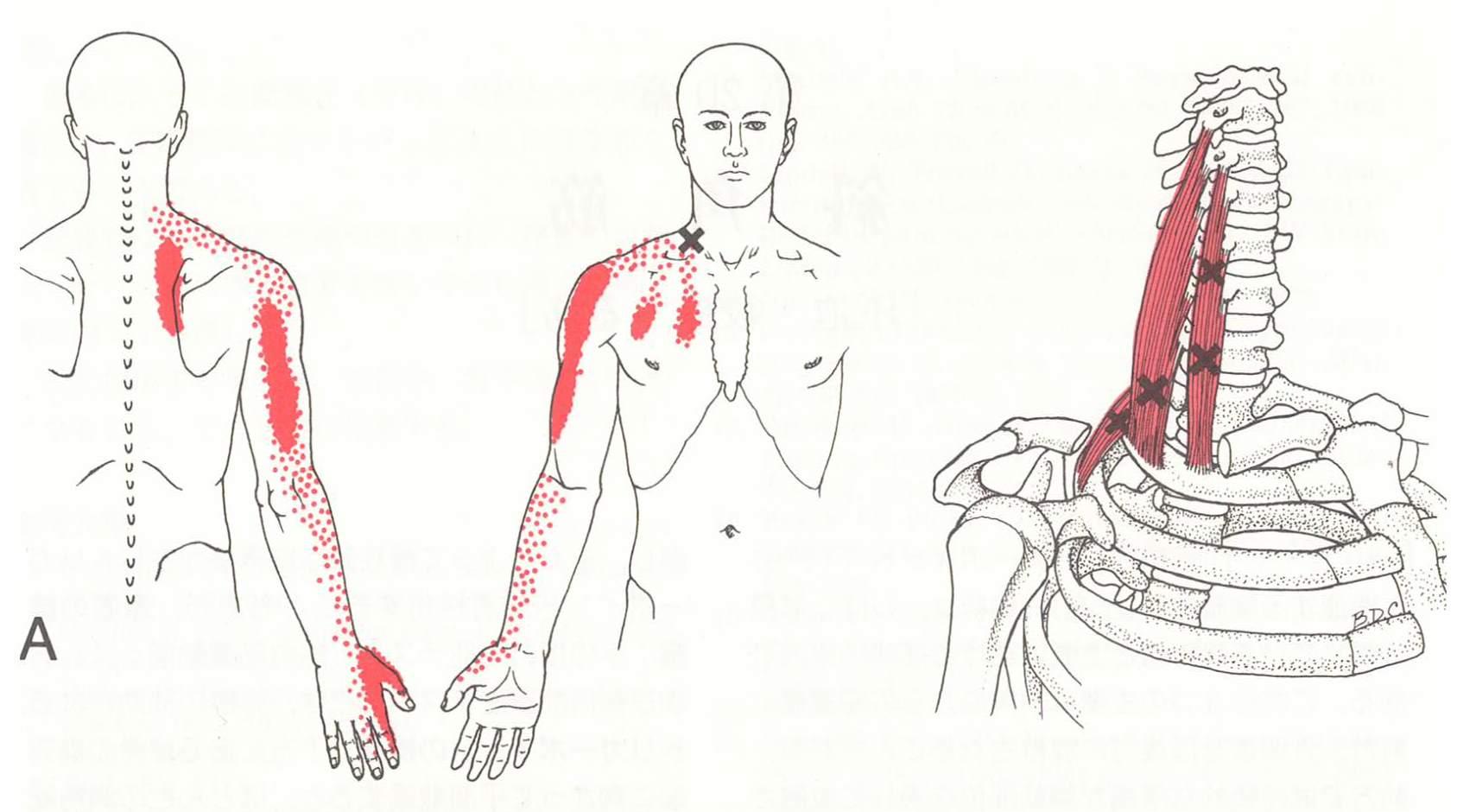 ケネディ-オルター-スン症候群 - meddic
